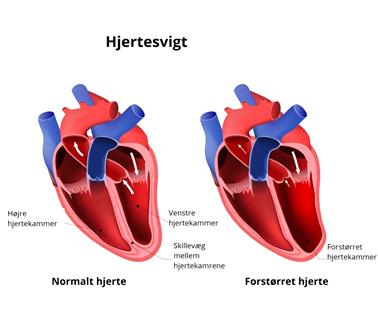 Hjertesvigt