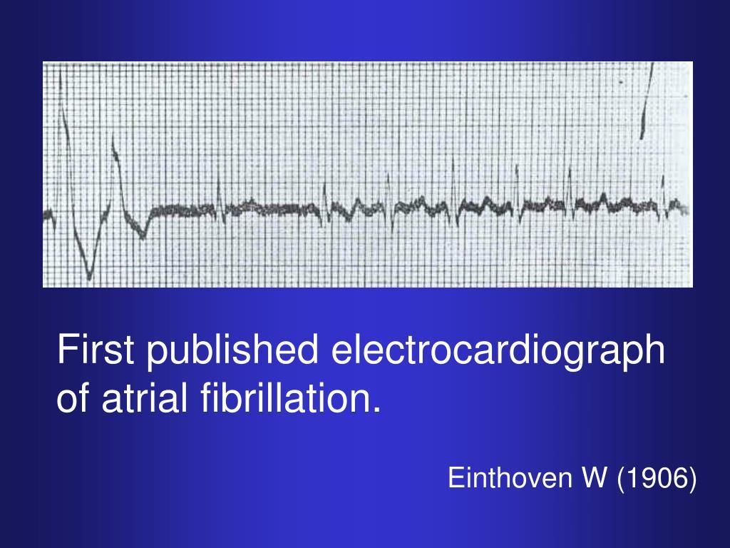 Den første EKG-optagelse af atrieflimren