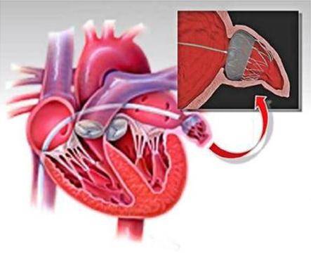 Lukning af venstre forkammers hjerteøre (Aurikellukning)
